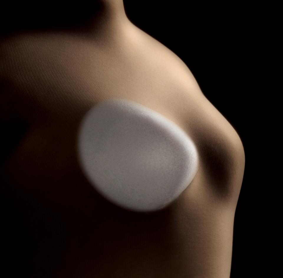 breast expander implant