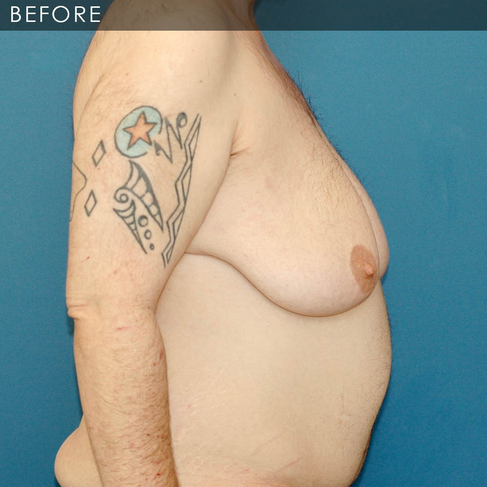 Breast surgery transgender-9055